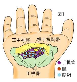 手根骨と横手根靭帯(屈筋支帯)